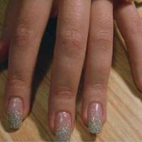 Деформация ногтя причины лечение